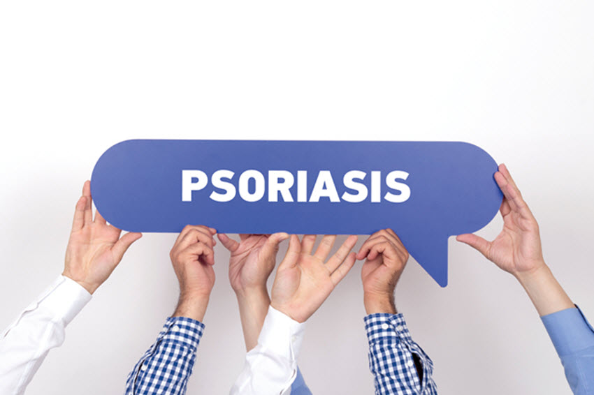 Psoriasis-treatments-kelowna