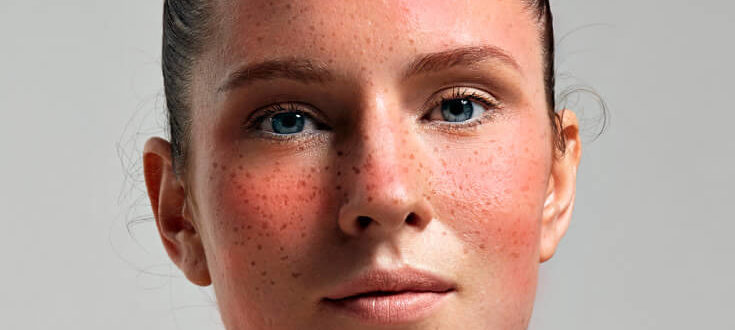 Rosacea-treatments