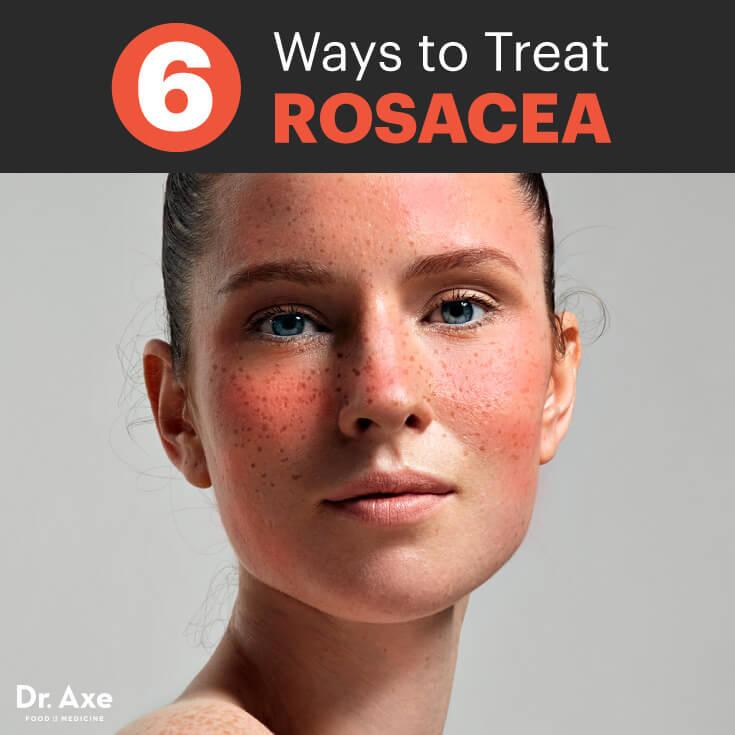 Rosacea-treatments