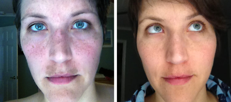 Acne Treatments Before After